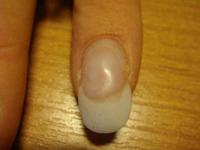 Почему ногти растут в другую