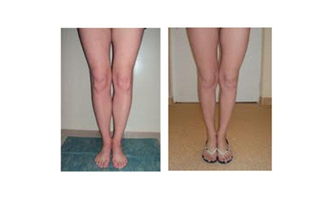 Как сделать так чтобы ноги были тонкие