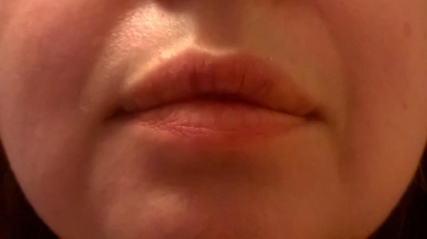 Когда зудят и опухают губы