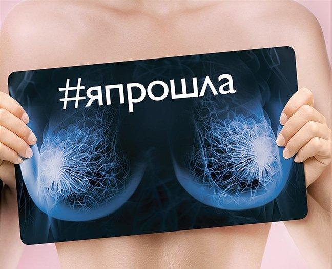 Вопрос времени: маммолог о ранней диагностике рака