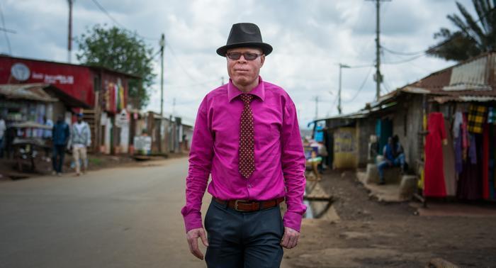 В Африке прошел первый в мире конкурс красоты для альбиносов
