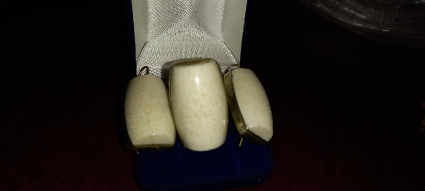 Кольцо и серьги натур.камень