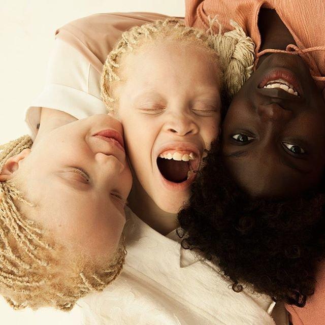 Близняшки-альбиносы из Бразилии штурмуют модную индустрию