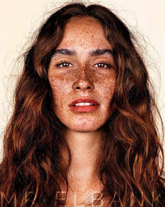 Зацелованные солнцем: фотопортреты людей с веснушками