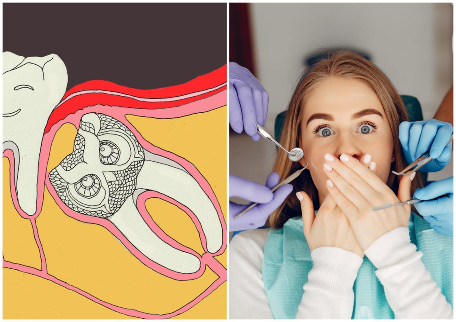 5 процедур, которые стоматологи делают себе и вам советуют