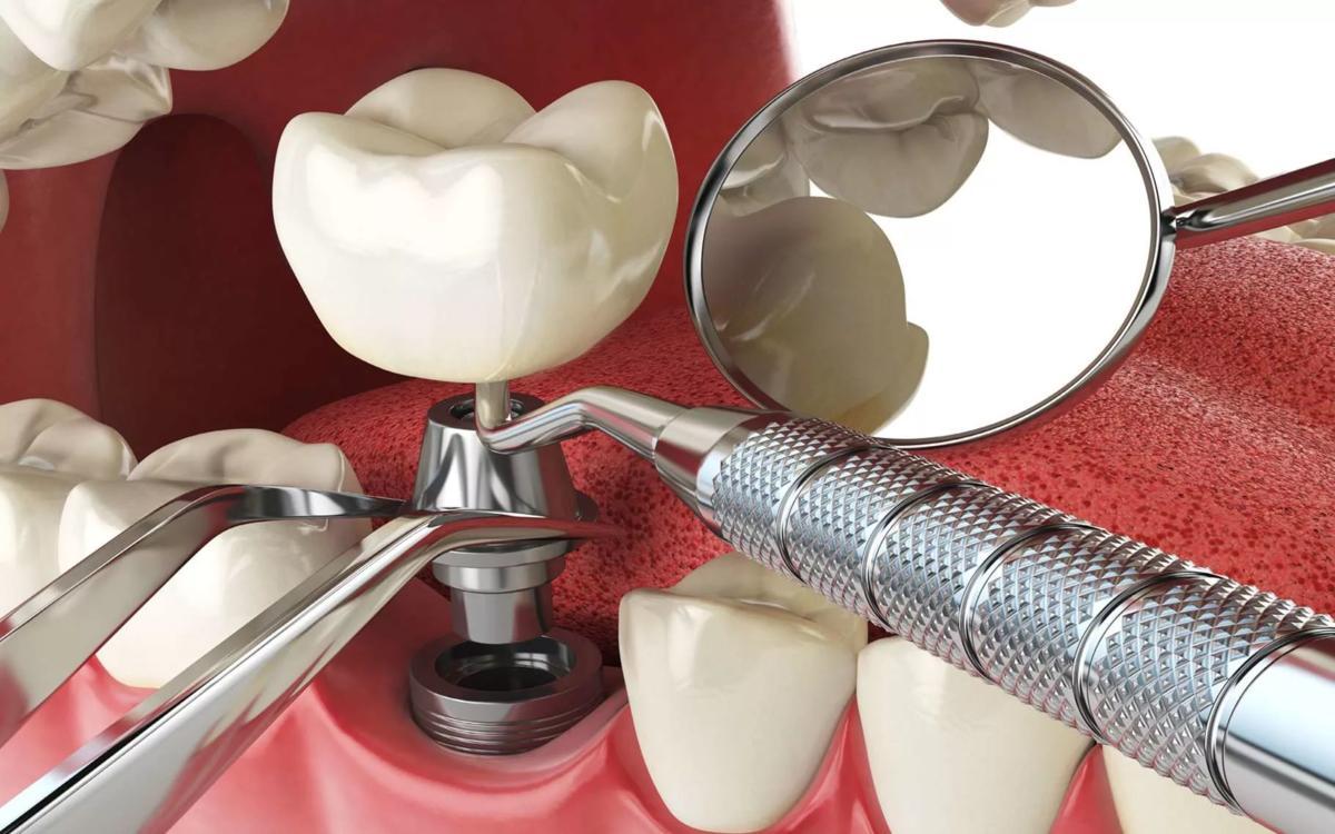 Больно, страшно, опасно! На самом деле нет: 5 заблуждений об имплантации зубов