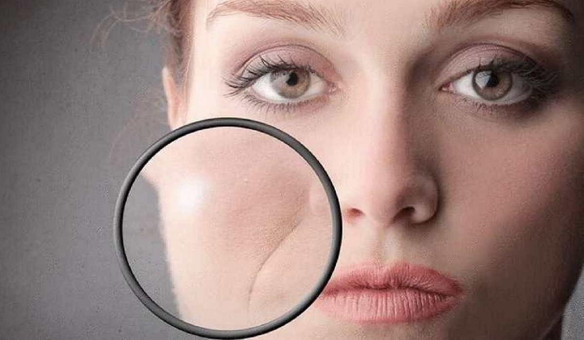 Как образуются носогубные складки и можно ли их предотвратить? Объясняет врач-остеопат