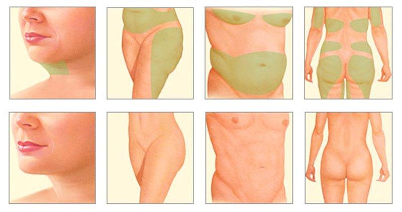 Звездный пластический хирург Сергей Блохин: «Достаточно приложить к увеличенной груди сканер, чтобы узнать о ней всё»