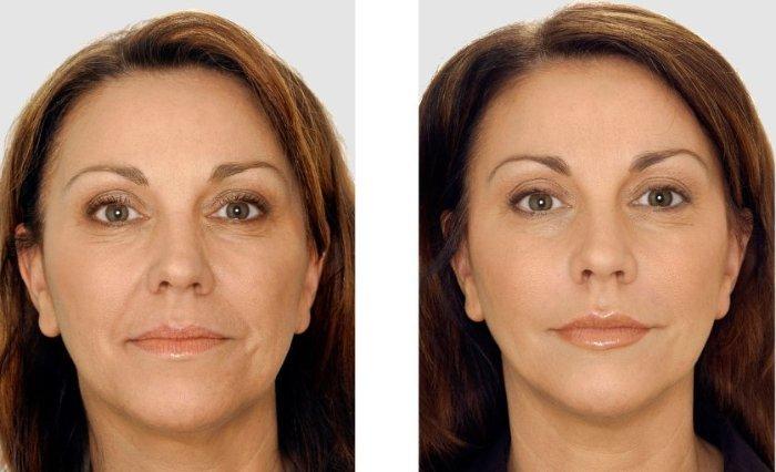 Пластика лица: до и после