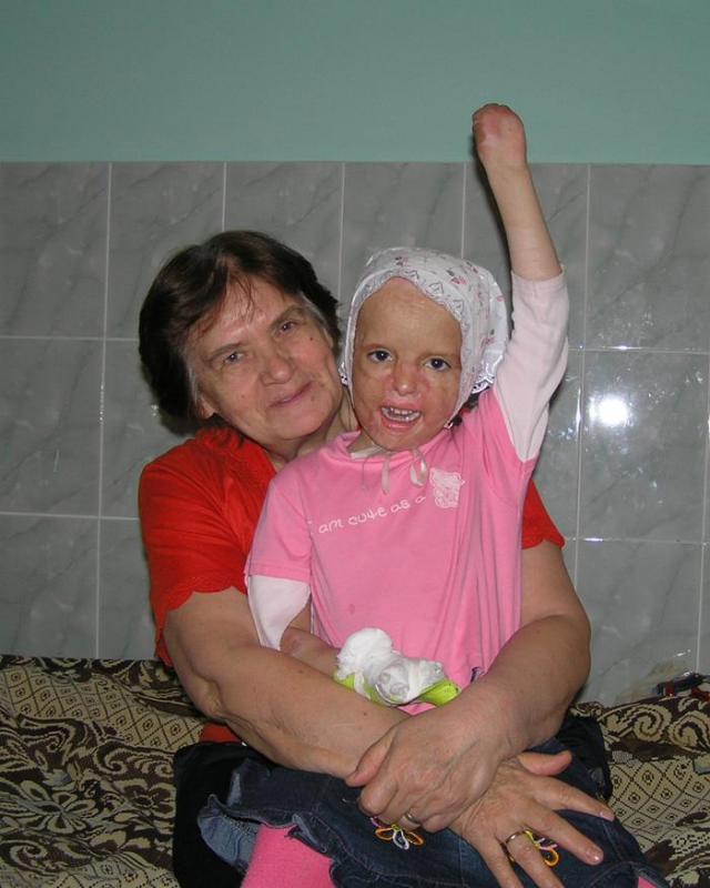 Катюша Сергеева.  ЛЮДИ, НЕ ПРОХОДИТЕ МИМО! У малышки очень тяжелая и сложная ситуация, не только в физическом, но и в моральном плане (см. топ в АП).  Им с бабушкой без нас не справиться, хотя они очень стараются. Они умнички! Катюше постоянно, на протяжении еще многих лет, будет нужна наша с вами помощь.  Поверьте, эта девочка достойна самого лучшего. Маленький ребенок, прошедший через огромное количество боли, страданий и лишений, но не потерявший веру в людей и умеющий радоваться жизни по-настоящему, с улыбкой - это дорогОго стОит!!! Реквизиты и информация:  здесь: http://eva.ru/topic/169/1901715.htm?messageId=60449663