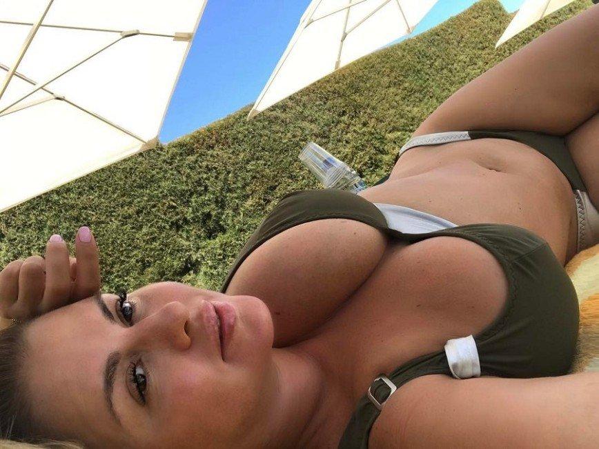 В последний день отпуска у Анны Семенович расплылась грудь