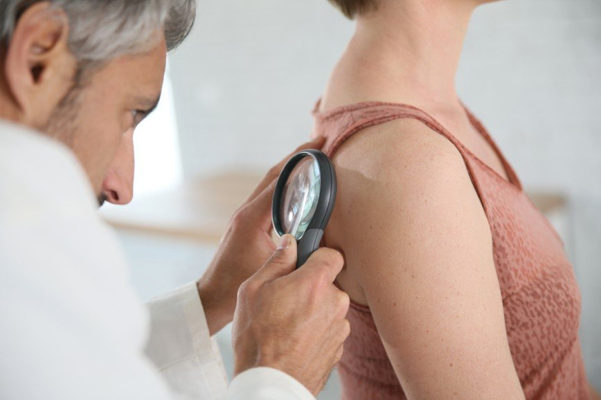 21 мая - день диагностики меланомы в России