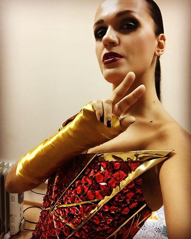 «Слава Золотая Ручка»: сломанная рука певицы стала поводом для шуток