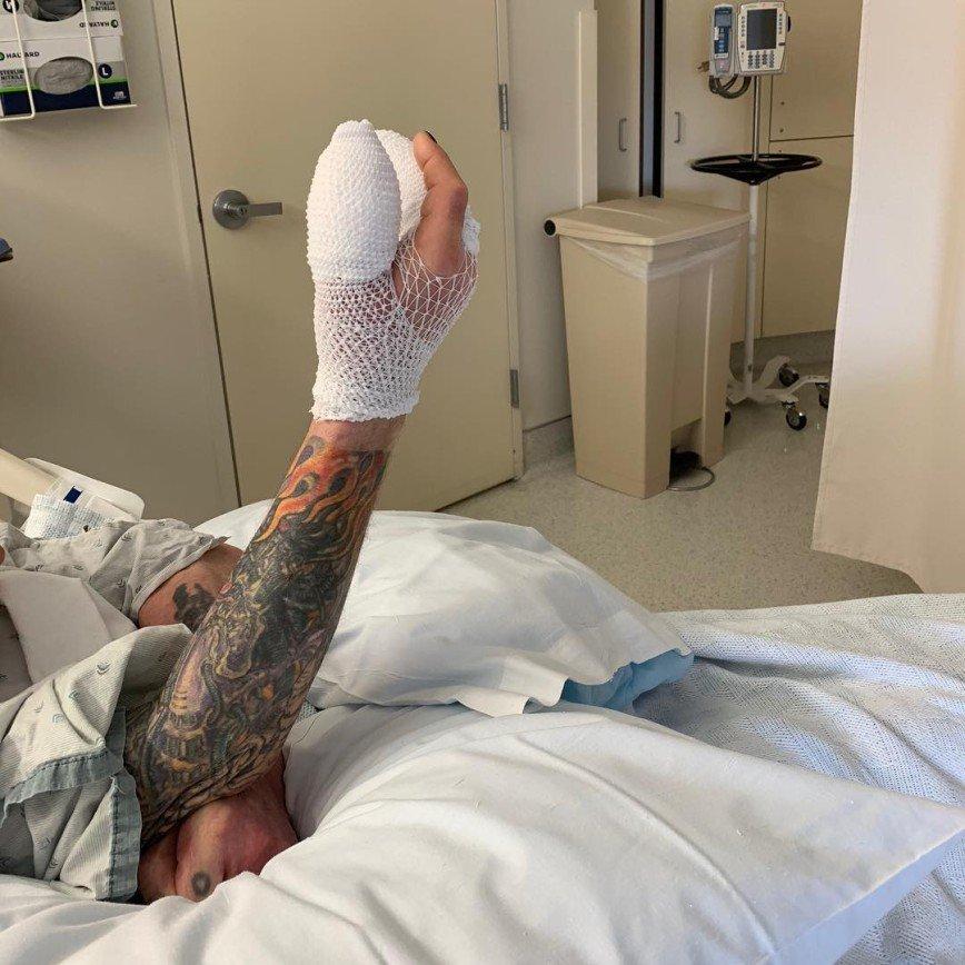 Оззи Осборн перенес экстренную операцию на руке