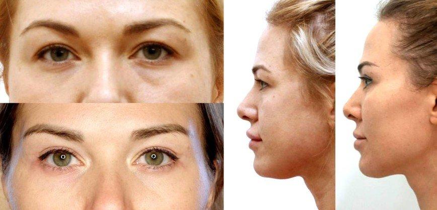 Мася Шпак показала фото до и после пластики лица