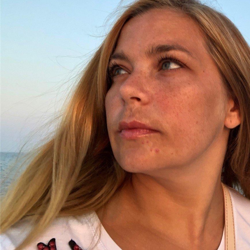 «Красива ль женщина с усами?»: публика обсуждает изъяны Ирины Пеговой