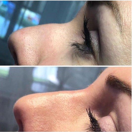 Как большой нос сделать маленьким без операции? Самый честный и подробный рассказ косметолога о модной процедуре